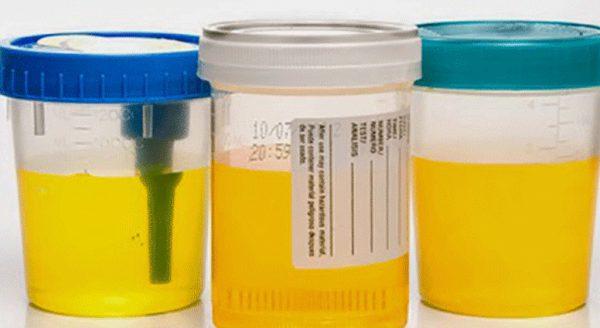 dulited-urine-nitrogen2